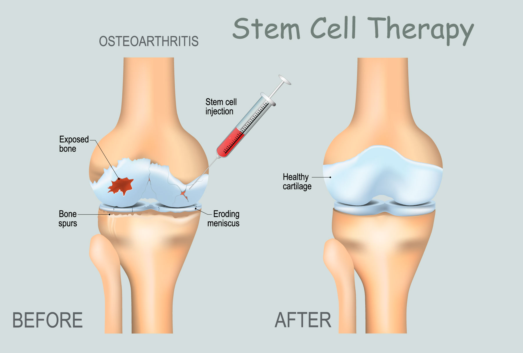 stem-cell Knee Pain Treatment