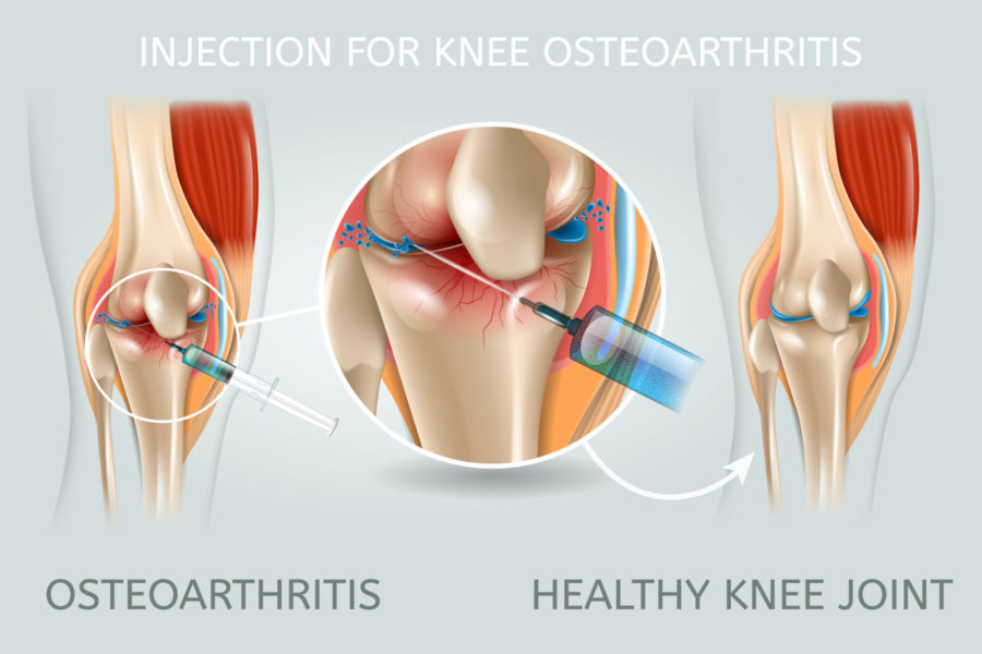 steroid-injection-to-treat-knee-pain